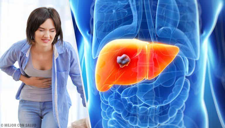 Todo lo que debes saber sobre el angioma hepático