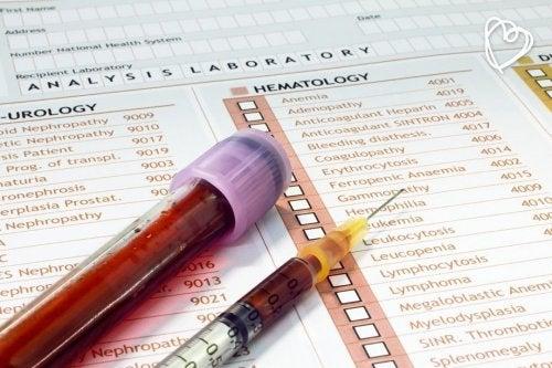 Analisis-de-sangre-para-asegurarnos-de-que-estamos-perfectamente