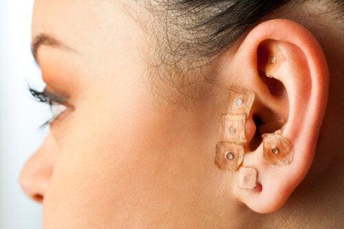 ¿En qué consiste la auriculoterapia?