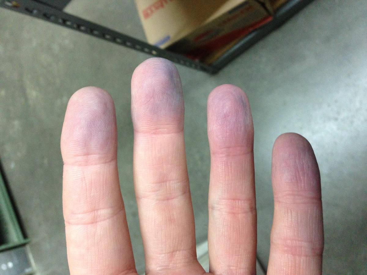 Dedos con cianosis