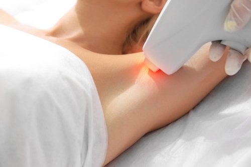 Mitos y verdades de la depilación con láser