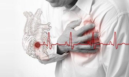 infarto es una emergencia