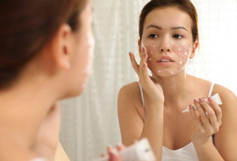 Peróxido de benzoilo para tratar el acné