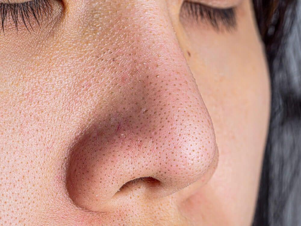 Piel del rostro con puntos negros.