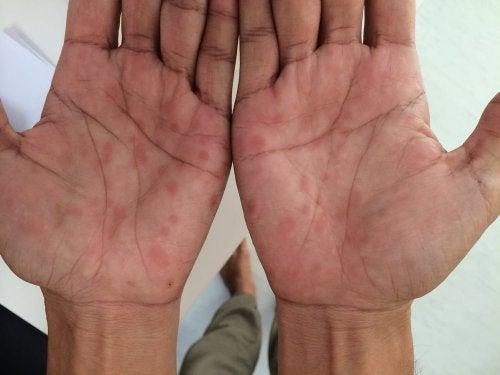 Sífilis manos
