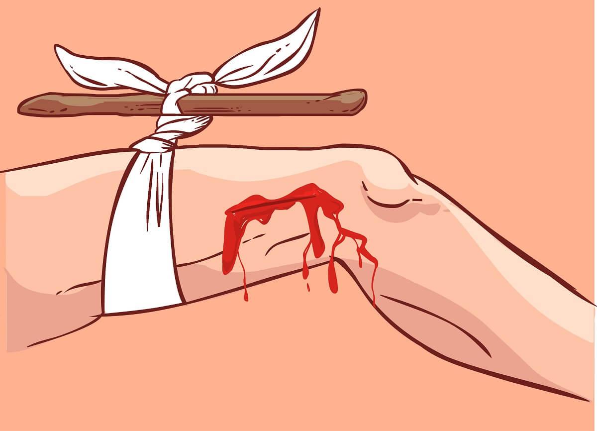 Torniquete, herida