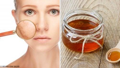 5 remedios caseros para tratar las infecciones en la piel