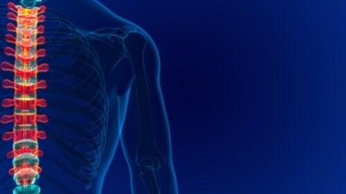 ¿Qué es un angioma vertebral? causas, síntomas y tratamiento