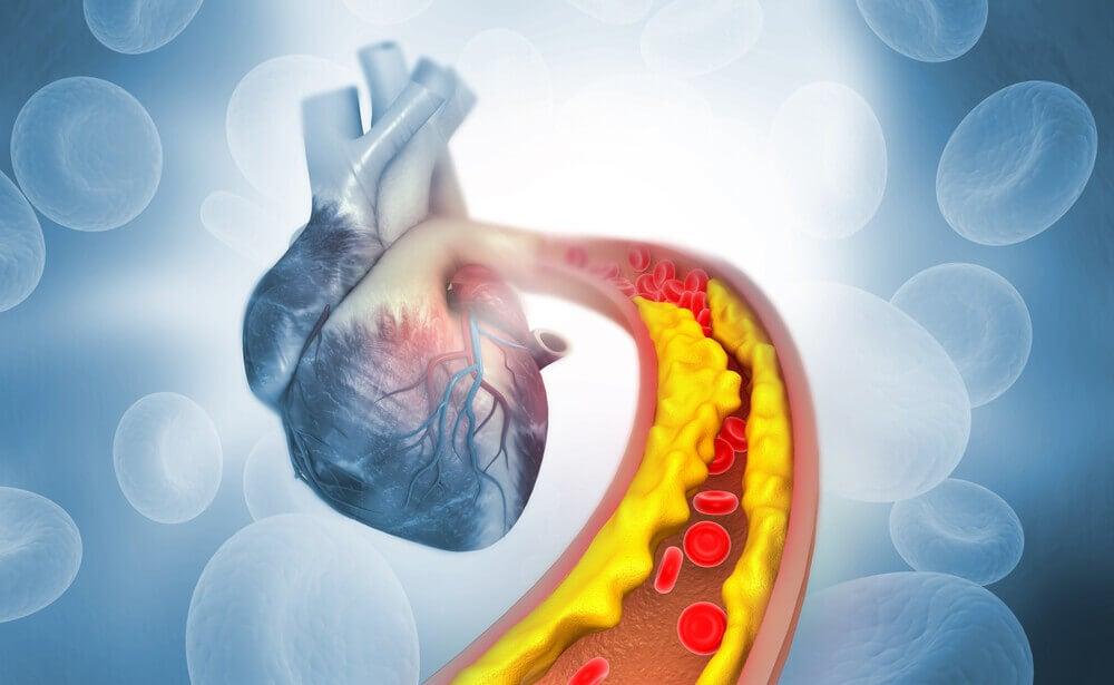 El colesterol alto.