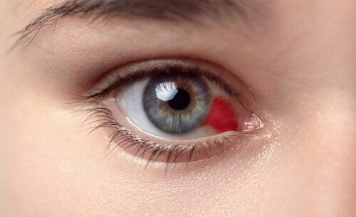 ¿Qué causa un derrame ocular y cómo tratarlo?