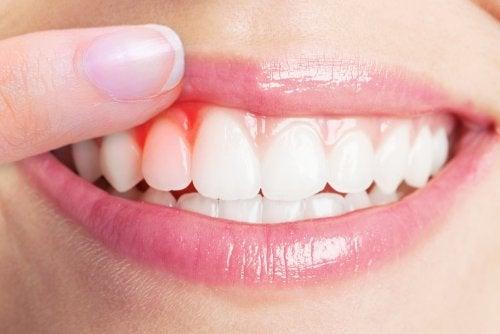 Los 4 mejores remedios para aliviar una infección de encías