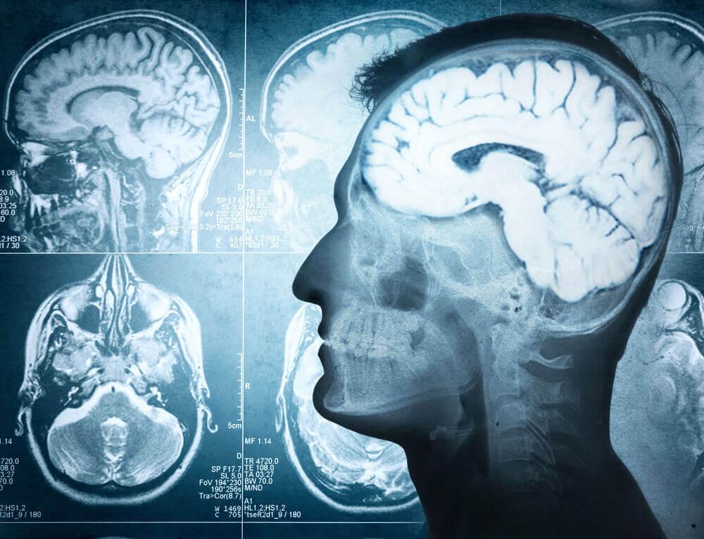 Causas del edema cerebral