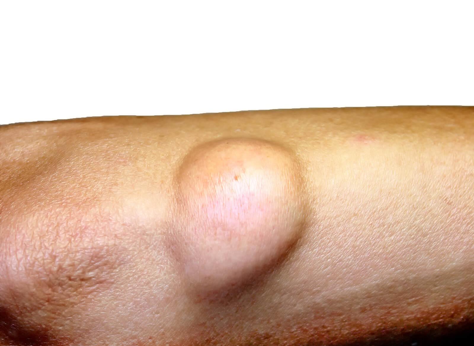 Lipomas malignos