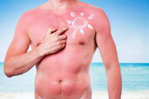 Torso de hombre quemado con crema en forma de sol.