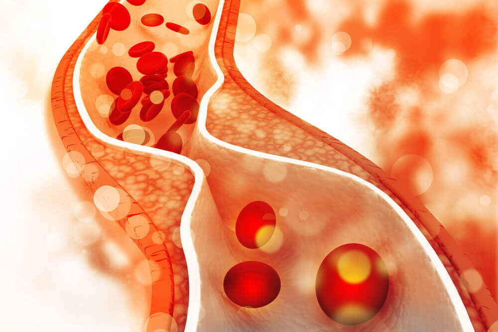 Erro na dieta de um paciente com colesterol alto: comer gorduras que obstruem as artérias