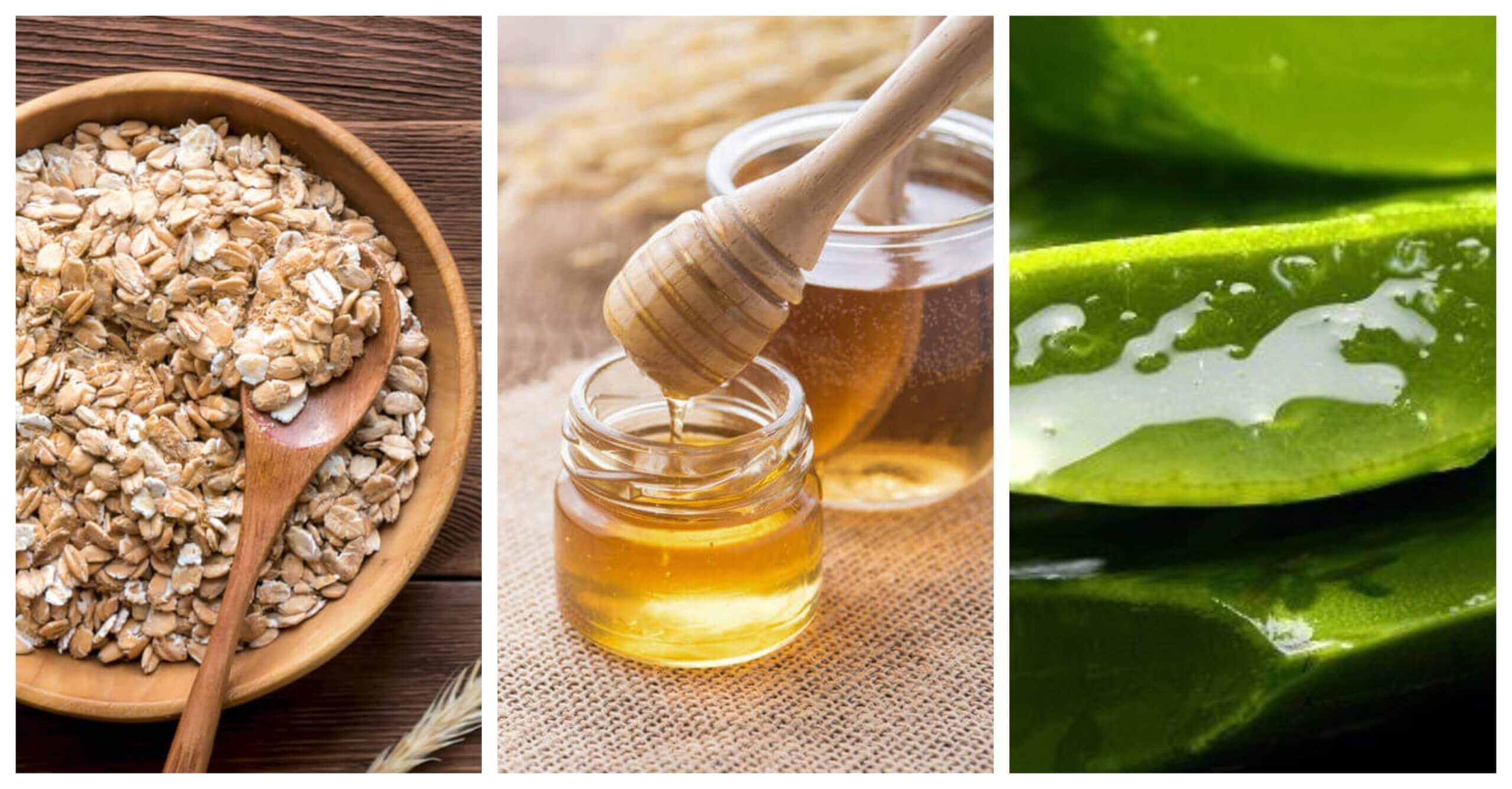 Remedios Naturales Efectivos Para La Dermatitis Seborreica Mejor Con Salud