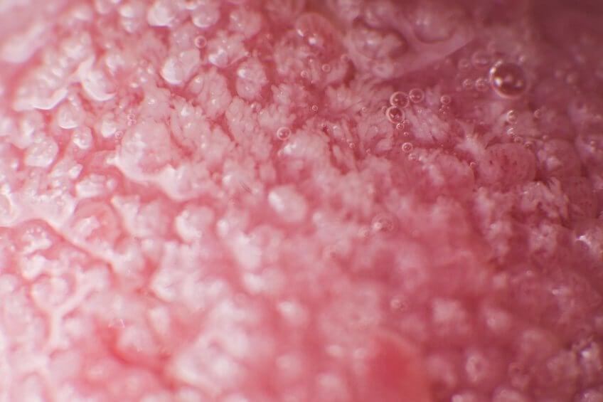Mujer con hongos en la boca.