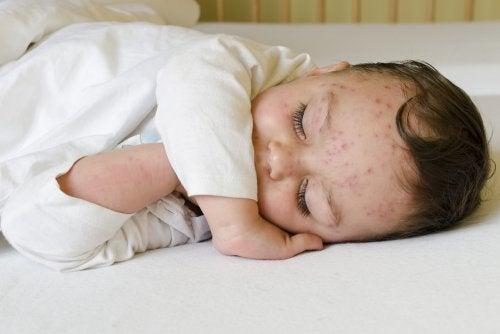 Todo lo que debes saber sobre la varicela en bebés