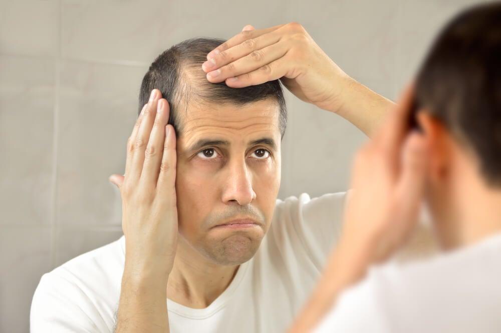 cebolla para la alopecia