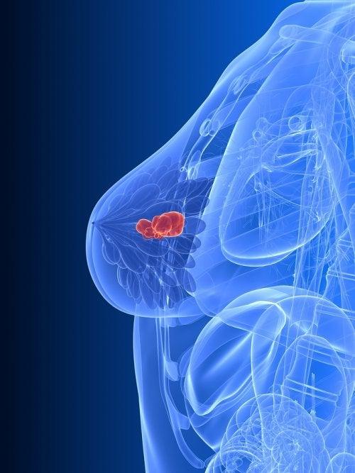Tipos de terapia hormonal para el cáncer de mama