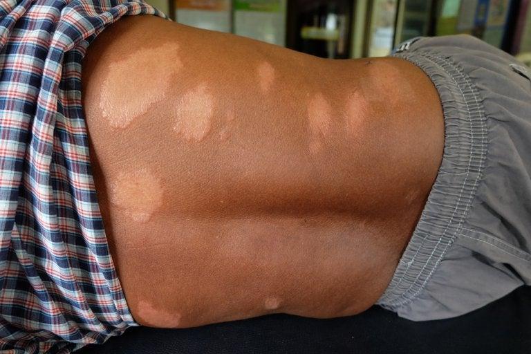 La enfermedad de Hansen, una infección gradual y crónica