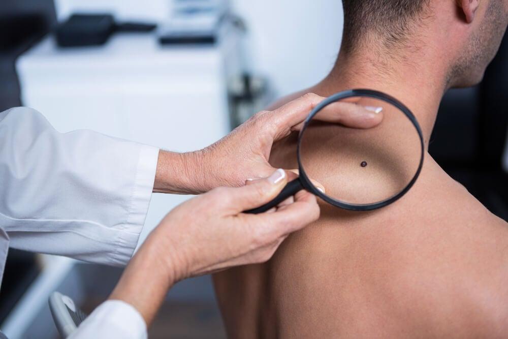 ¿Cómo se produce el cáncer de piel?
