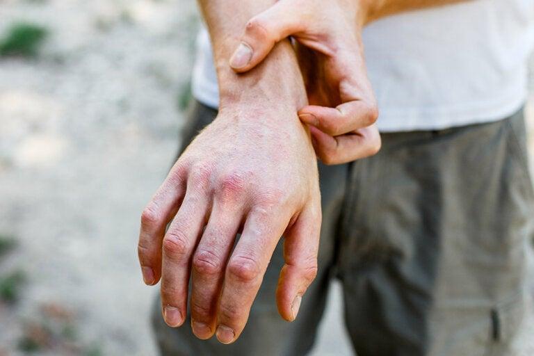¿En qué consiste el exantema fijo medicamentoso?