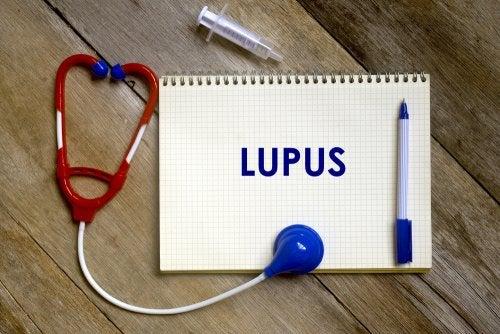 ¿Cuáles son los factores de riesgo del lupus?