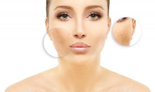 cual es el remedio mas eficaz para las manchas en la cara