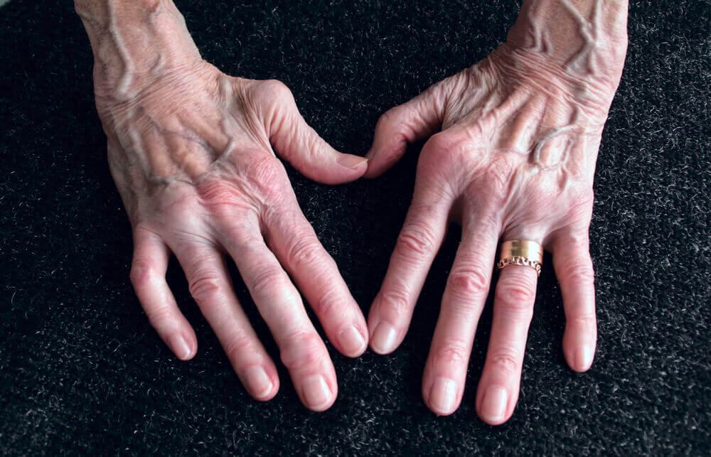 El ñame silvestre y la artritis reumatoide.