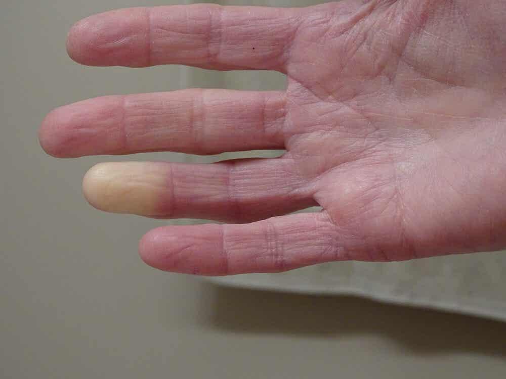 Esclerodermia en las manos.