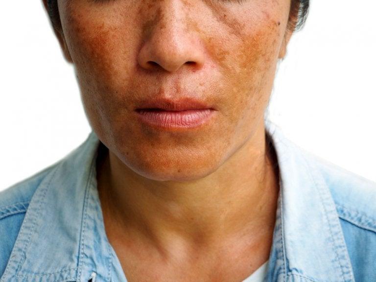 3 tratamientos para reducir las manchas por melasma