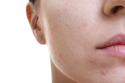 Descubre este increíble tratamiento para la piel grasa