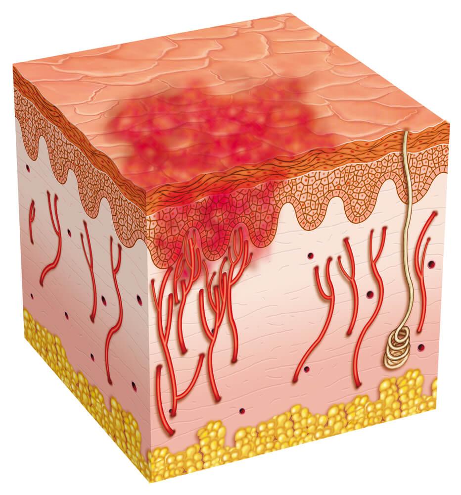 Qué son las úlceras por presión