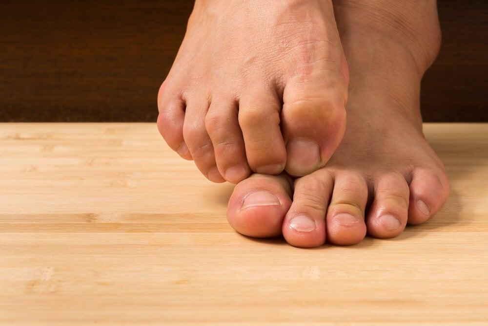 eliminar el pie de atleta