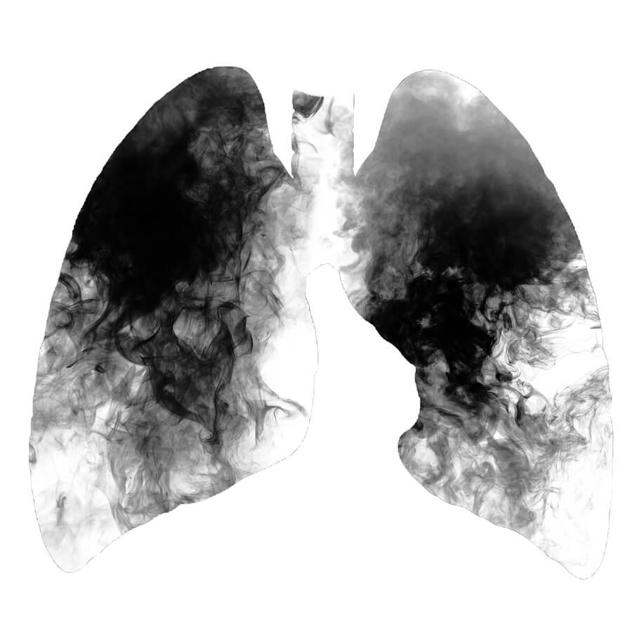 ¿Por qué fumar produce cáncer de pulmón?