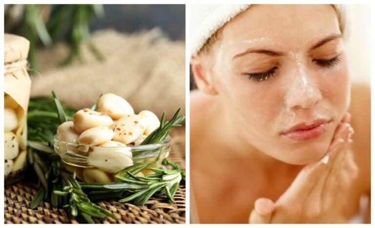 5 remedios con ajo para tratar el acné