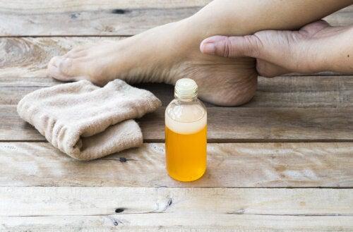 ¿Cómo calmar una torcedura de tobillo con 5 remedios caseros?