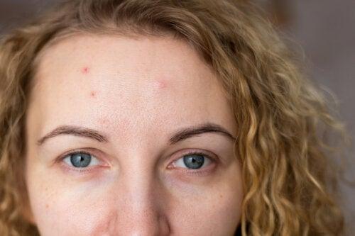 5 síntomas del síndrome de ovarios poliquísticos