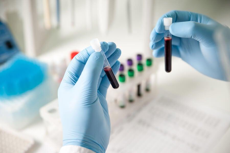 ¿Qué es un hemograma? ¿Para qué sirve?