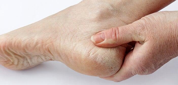 ¿Por qué siempre nos olvidamos de la salud de nuestros pies?