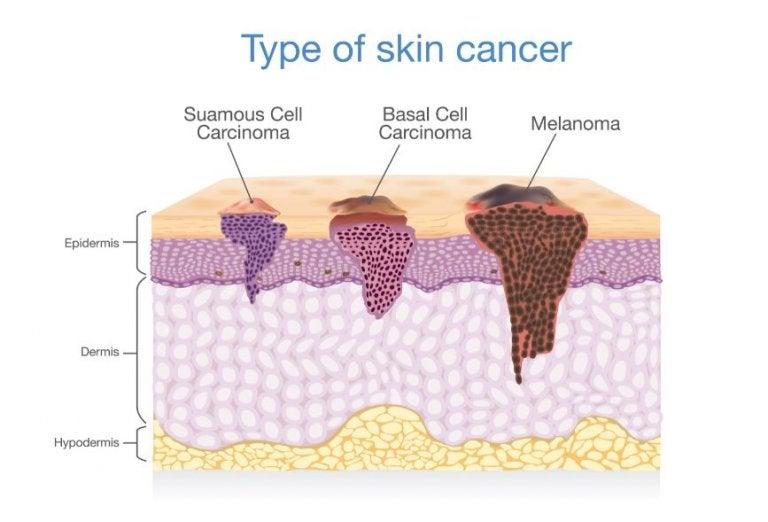 ¿Cómo es la evolución del cáncer de piel?