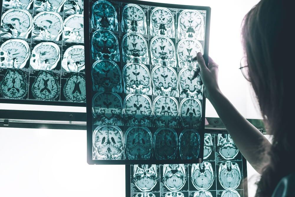 ¿Qué es el CRE Alzheimer?