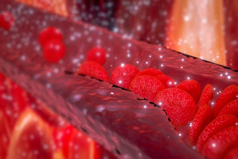 ¿Qué es la arteritis?¿Cuáles son sus síntomas?