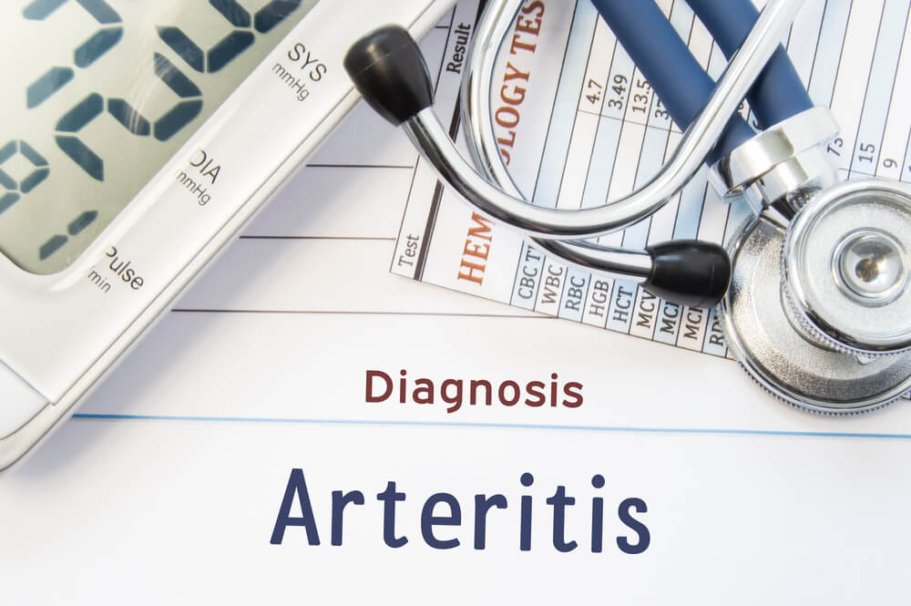 Arteritis de Takayasu: inflamación que afecta a los vasos grandes