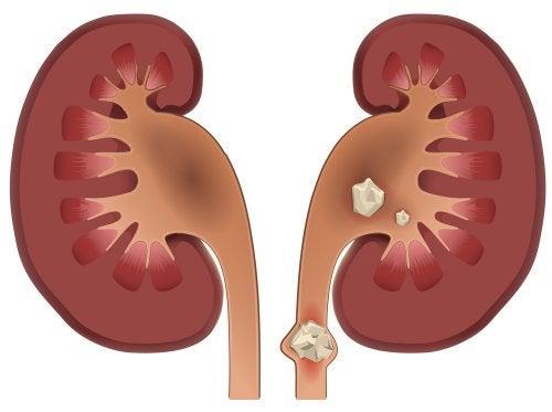 Dieta hiperproteica calculo renal