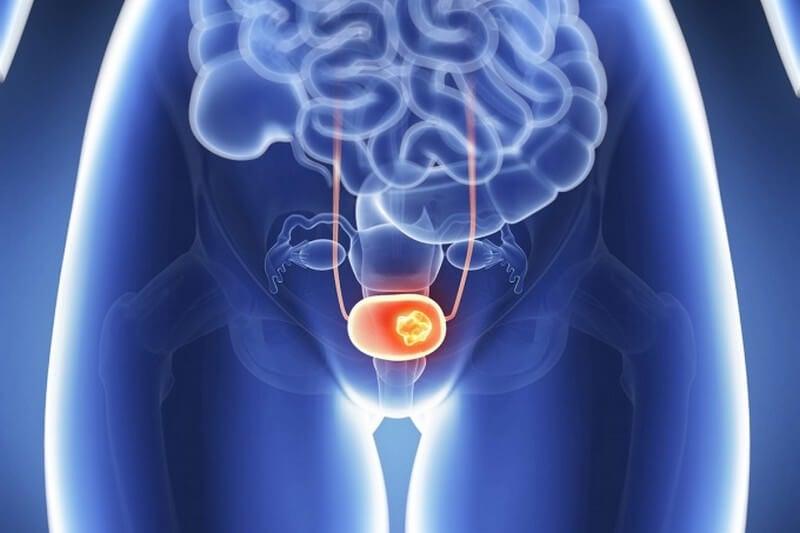 Estadios del cáncer de vejiga