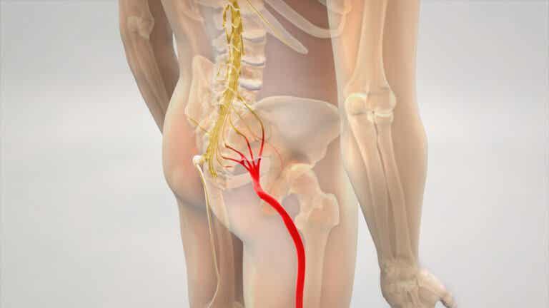 La ciática en las piernas