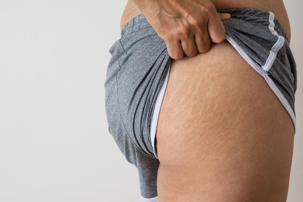 5 tratamientos con aceite de coco para reducir las estrías y cicatrices