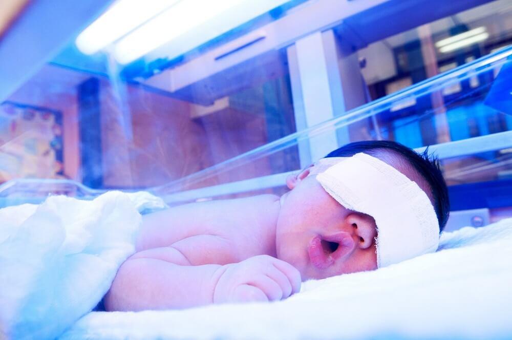 Fototerapia recién nacido con enfermedad hemolítica.